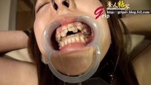 鼻フック&開口器唾ダラ穴向け歯列矯正娘/リョウコちゃん
