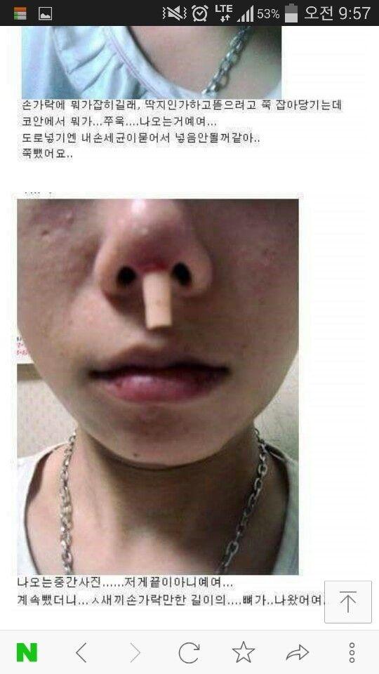 整形の鼻の中身が (2)
