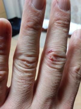 指リサイズ